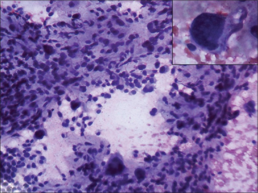 Fine-needle aspiration cytology of the anterior abdominal wall lump - H and E stained slides revealed hypercellular smear showing markedly pleomorphic/ sarcomatous cells including giant cells amidst stroma consistent with osteogenic sarcoma (×200). Insert: A large sarcomatous cell with a pleomorphic nucleus and moderate cytoplasm (×100)