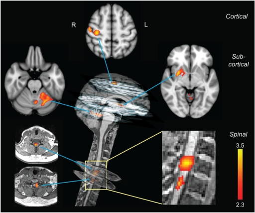 Neural correlates of motor sequence learning.Distinct cortical, subcortical, and spinal clusters showed learning-related modulation in activity only during the CS condition. All clusters of activation are positively correlated with the performance speed. At the cortical level, the activation cluster was located in the contralateral sensorimotor cortex. At the subcortical level, one cluster was found in the contralateral putamen, while the other was observed in the ipsilateral lobule V-VI of the cerebellum. In the spinal cord, activation clusters were centered on the C7–C8 spinal segments, similar to those observed in the main effect of practice. The color bars indicate Z-score values; all activation maps are corrected for multiple comparisons using GRF, p < 0.01.