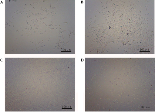 Observation of rat ADSC morphology (magnification, ×100). (A) Rat ADSC morphology 10 h after inoculation. Primary culture after (B) 72 h and (C) 8 days. (D) Third-generation ADSC. ADSC, adipose-derived stem cell.