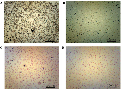 Staining of adipose-derived stem cells following osteogenic induction (magnification, ×100). (A and B) Alkaline phosphatase staining 2 weeks after osteogenic induction in the (A) experimental and (B) control groups. (C and D) Alizarin red staining 4 weeks after osteogenic induction in the (C) experimental and (D) control groups.