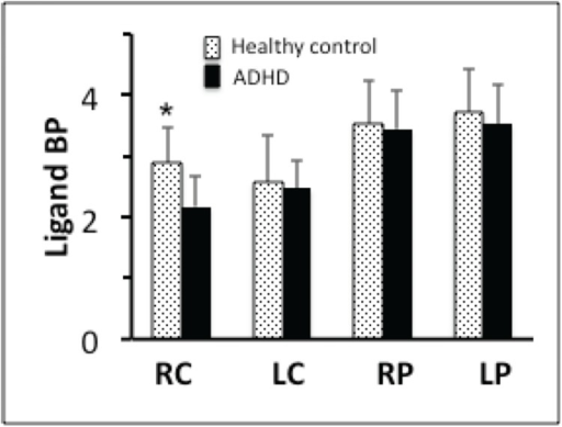 The ligand BP in ADHD and healthy control volunteers in Incongruent condition.ADHD volunteers had lower BP in all striatal areas (suggesting higher amount of dopamine release) but the difference was significant (p = 0.004) only in the right caudate. RC = right caudate, LC = left caudate, RP = right putamen, LP = left putamen.