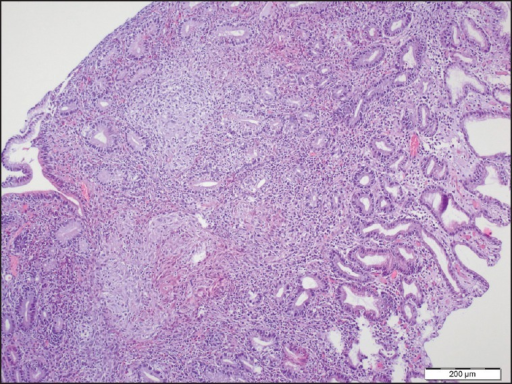 Pathology of the gastric antral biopsy (H and E, ×100) showed non-caseating granulomas composed of epithelial and multinucleated giant cells extend under the epithelium from gastric biopsy