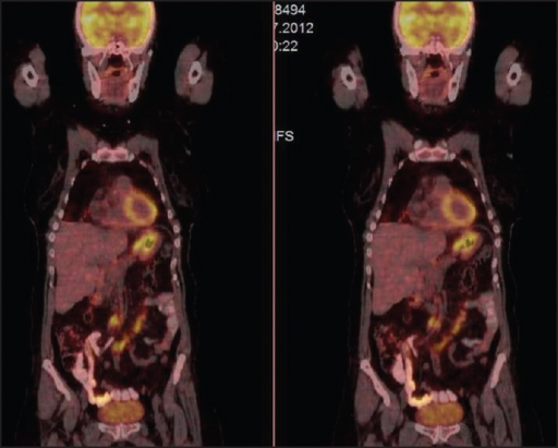 The image of positron emission tomography/computed tomography with involvement of pathological uptake of 18F-fluoro-2-deoxy-d-glucose of the stomach and mesenteric lymphadenopathies