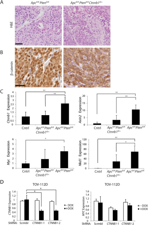 "Heterozygous Ctnnb1 inactivation does not prevent mouse ovarian endometrioid adenocarcinoma (OEA) development and the reduction in Ctnnb1 dosage or CTNNB1 transcripts shows differential effects on selected β-catenin/TCF target genes.(A) Representative photomicrographs of H&E stained ovarian cancer tissue sections from Apcfl/flPtenfl/fl, and Apcfl/flPtenfl/flCtnnb1fl/+ mice show similar morphologic characteristics independent of Ctnnb1 gene dosage, with areas of glandular, overtly epithelial differentiation admixed with more poorly differentiated spindle-cell areas. Scale bars, 100 μm. (B) Representative photomicrographs of β-catenin immunohistochemical staining in tumors from Apcfl/flPtenfl/fl mice, showing strong nuclear β-catenin translocation and moderate cytoplasmic staining, whereas tumors from Apcfl/flPtenfl/flCtnnb1fl/+ mice showed weak nuclear and moderate cytoplasmic β-catenin staining. Scale bars, 25 μm. (C) cDNAs were obtained from murine normal ovaries (Cntrl, n = 4) and OEAs from Apcfl/flPtenfl/flCtnnb1fl/+ (n = 6), and Apcfl/flPtenfl/fl (n = 6) mice following AdCre injection. Transcript levels of Ctnnb1, Axin2, Myc and Nkd1 were measured by qRT-PCR analysis and normalized with β-actin. The gene expression levels were set to 1 for control (Cntrl) group. Error bars denote S.D. **P < 0.01 and *P < 0.05. (D) TOV-112D cells (the human OEA-derived cell line harboring β-catenin gain of function mutation), stably transduced with two different doxycycline-inducible shRNAs targeting CTNNB1 (CTNNB1-1 and CTNNB1-2) or a non-silencing scramble shRNA (Scrmbl), were treated for 4 days with DOX (""+ DOX"") or a solvent control (""- DOX""). CTNNB1 shRNA-mediated effects on CTNNB1 (left) and MYC (right) gene expression are shown. Gene expression was assessed by qRT-PCR and normalized to HPRT expression. Error bars denote S.D. *P < 0.05 in Student's t test."