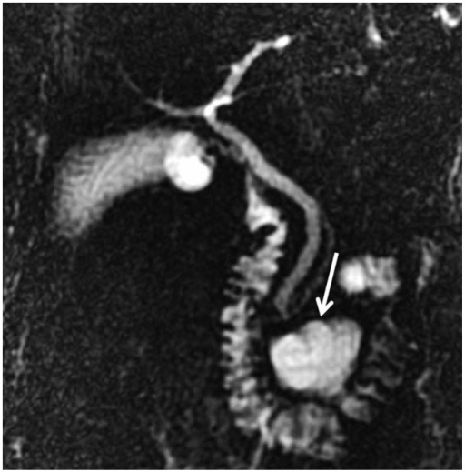 Diverticulum.On MRCP, large diverticulum located distally in 3rd segment of duodenum is seen (arrow). If diverticula appear completely in fluid signal, they may misdiagnosed as cystic tumors of pancreas on CT or MRI. MRCP is highly successful both in imaging biliary tree and in determining liquid structures and their origins in this localization. MRCP = magnetic resonance cholangiopancreatography