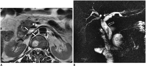 Diverticulum.On axial T2-weighted (A) and magnetic resonance cholangiopancreatography (B) images, 4 cm diverticulum (white arrows in A) is seen at transverse segment of duodenum. On axial section (A), air within diverticulum lumen causes signal void (arrowheads in A). In addition, choledochus (arrow in B) is larger than expected, with filling defects within its lumen related to stones and stent (B). Air-fluid level within diverticulum is important sign that allows its recognition on axial sections and also allows differentiation from other cystic lesions that may be encountered within region. D = diverticulum