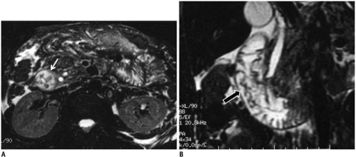 Duodenal wall thickening secondary to acute pancreatitis.In patient with acute pancreatitis, on axial (A) and coronal (B) fat-suppressed T2-weighted MR images, mural thickening and edema in second portion of duodenum are depicted (white arrow in A, black arrow in B). Pancreatitis is most common inflammatory process that affects duodenum. Inflammation of pancreas and release of exocrine enzymes may lead to mild to severe duodenal edema and gastric outlet obstruction. Moreover, in severe pancreatitis, intramural hematoma may also develop.