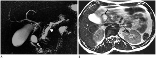 Pseudocyst in duodenum wall.On magnetic resonance cholangiopancreatography (MRCP) (A) and axial T2-weighted MR images (B), cystic lesion consistent with pseudocyst is seen at lateral wall of duodenum in patient with chronic pancreatitis (black arrows in A and B). On MRCP image, pancreatic duct is dilated and irregular because of chronic pancreatitis (arrowhead in A). In pancreatitis, depending on depth of penetration, pseudocysts settle either between serosa and muscular layer or between muscular layer and mucosa. With accumulation of secretion and increase of pressure, obstruction in intestinal lumen and gastric outlet syndrome may occur. Tubular shape of pseudocyst that complies with progress of intestinal wall and abrupt flattening on intestine wall are findings that indicate intramural settlement. Duplication cysts and choledochocele should be considered in differential diagnosis.