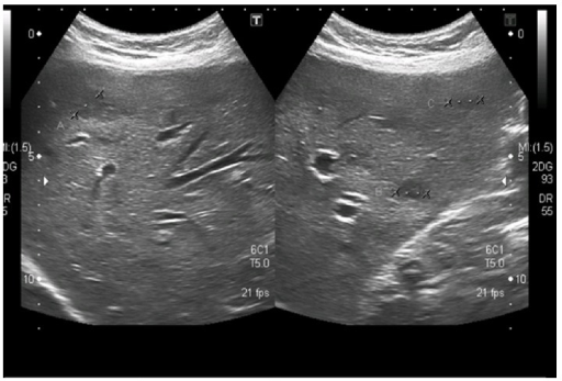 Ultrasound upper abdomen. Multiple hypoechoic tiny lesions on both lobes, few of them cystic in appearance.