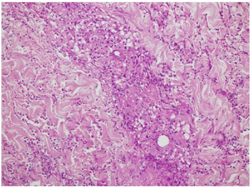 Skin biopsy. Vasculitis involving the superficial and deep dermis showing fibrinoid necrosis of vessel wall with granuloma formation, neutrophilic infiltrate, and nuclear debris.
