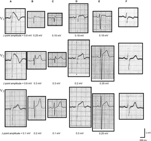 Representative ECG tracings of the type 1 Brugada‐type ECG (BrS), non–type 1 BrS, atypical ST‐segment elevation in the right precordial leads (STERP), and non–ST‐segment elevation (non‐ST) groups. Type 1 BrS (A) is characterized by prominent coved ST‐segment elevation displaying a J point amplitude ≥0.2 mV at its peak, followed by a negative T wave. Non–type 1 BrS (B and C) also has high takeoff ST‐segment elevation, but in this case, the J point amplitude (≥0.2 mV) gives rise to a gradually descending ST‐segment elevation followed by a positive or biphasic T wave that results in a saddleback configuration. STERP (D and E) shows noncoved and nonsaddleback ST‐T morphology with J point elevation ≥0.2 mV in the right precordial leads. F, J point elevation of <0.2 mV in the right precordial leads is included in the non‐ST group.