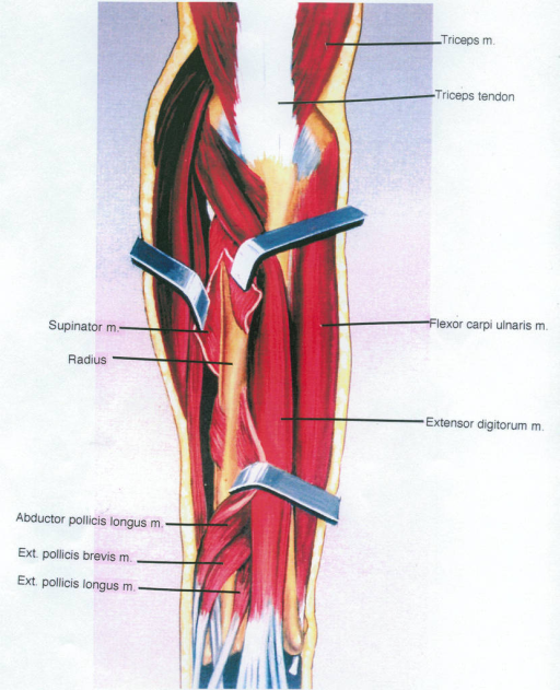 triceps muscle; triceps tendon; supinator muscle; radius; abductor pollicis longus muscle; extensor pollicis brevis muscle; extensor pollicis longus muscle; flexor carpi ulnaris muscle; extensor digitorum muscle