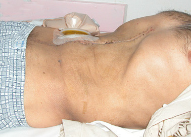 Postoperative appearance of the patient. Abdominal distension has been significantly reduced after the masses have been totally removed. Incision scar and an end ileostomy bag are seen.