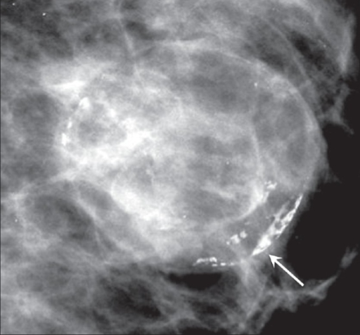 Breast tissues in calcification