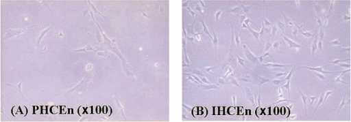 The morphological characteristics of isolated primary human corneal endothelial cells (PHCEn) and immortalized human corneal   endothelial cells (IHCEn). IHCEn were polygonal to slightly elongate in shape, similar to PHCEn.