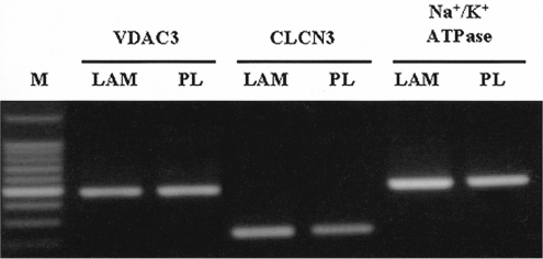 Messenger RNA expressions of channel proteins and Na+/K+ ATPase in established IHCEn cultivated on a lyophilized amniotic membrane (LAM) and plastic culture dish (PL), respectively. IHCEn cultivated on LAM showed slightly stronger expressions of all factors.
