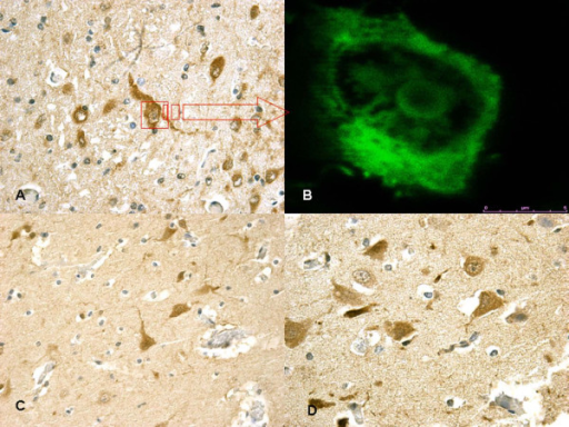 (A) In non-acute cases (~10 hs) HSP70 reaction was prominent in the neuron cytoplasm of the affected regions. (B) (insert) Confocal laser scanning microscope: typical morphological features of neuronal (green) apoptosis associated with marked condensation of chromatin and its fragmentation into discrete bodies. (C-D) In acute cases a mild HSP70 reaction was evident in sporadic fields.