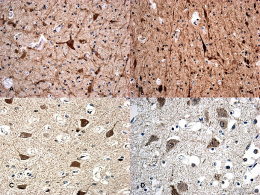 Immunohistochemical staining for HSP90 at 12 hs (A-B) and at 15 hs (C) exhibited an intense reaction in the cytoplasm of the neurons. The reaction must be compared with acute case (≤8 hs) (D) in which a mildly granular reaction is evident in the neurons.