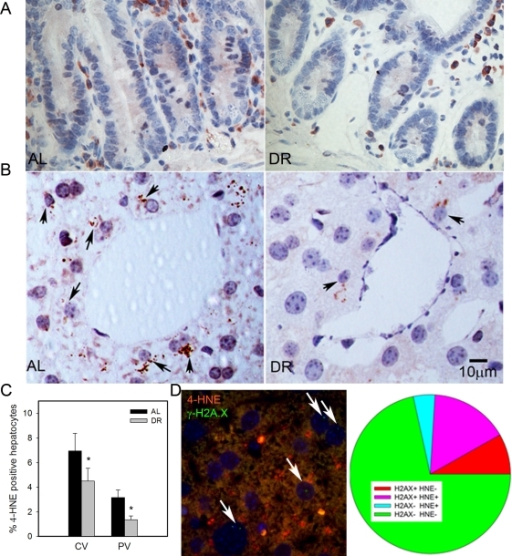 DR decreased lipid peroxidation in liver.(A) Representative 4-HNE immunohistochemistry in small intestine from AL (left) and DR(right) mice. Brown: 4-HNE staining; blue: nuclei. (B) Representative 4-HNE images from centrilobular areas in liver. Brown: 4-HNE, Blue: nuclei. Arrows indicate examples of positive cells. (C) Frequencies of 4-HNE-positive hepatocytes in periportal and centrilobular areas of liver. Data are mean±S.E.M. * p<0.05, n=5 animals/group. (D) Co-localisation of γ-H2A.X (green) and 4-HNE (red) in AL liver. Representative image, double immunofluorescence, cryosection. Cells with nuclei (DAPI, blue) positive for γ-H2A.X are marked by arrows. Cells were scored as either single positive (H2AX+ HNE - or H2A.X- HNE +), double positive (H2A.X+ HNE+) or double negative (H2A.X- HNE -). Data are from four animals from the AL group.