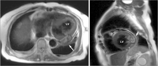 Cardiac magnetic resonance imaging during the previous admission shows a focal, bulging, sac-like lesion (arrow) without a definite peripheral wall in the lateral wall at the mid-LV level. LV: left ventricle.