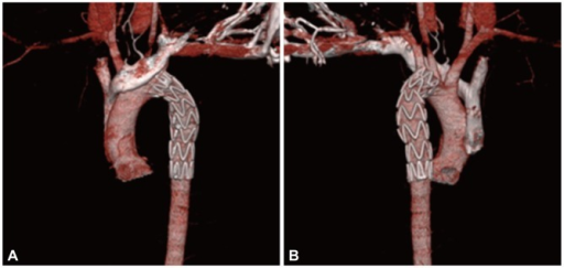 Follow-up chest computed tomography angiogram shows vascular stent graft insertion state from distal aortic arch to proximal descending thoracic aorta and resolved state of previous traumatic aortic dissection. A: anterior view. B: posterior view.