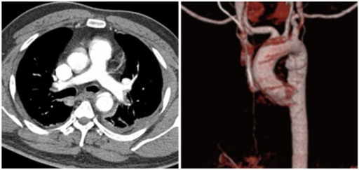 Initial chest computed tomography angiogram shows traumatic aortic dissection in distal aortic arch/proximal descending thoracic aorta with surrounding hematoma.