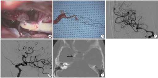 Surgical finding of the acutely angled and circumferentially calcified distal ICA (A) before arteriotomy is showing. Surgically removed Solitaire AB stent is containing the main thrombi at the distal part of the stent strut (B). A-P and lateral angiography immediately after surgery is showing full recanalization of the occlusion (C and D). Bone window image of a baseline CT scan shows severely and circumferentially calcified supraclinoid segment of the ICA (arrow), which corresponds to the surgical finding (E). ICA: internal carotid artery.