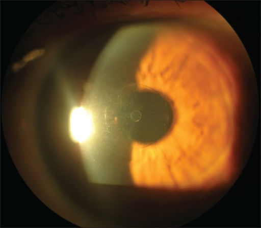 Flexivue Corneal Inlay, (photo courtesy of Prof. I. Pallikaris, University of Crete, Greece)