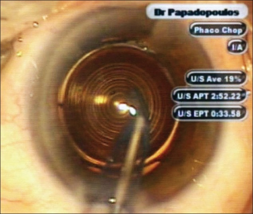 Diffractive Apodized Multifocal IOL