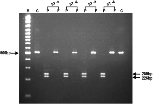 Representative photomicrograph showing the results of RFLP after digestion of PCR amplified product with endonucleases, Apo1 and AfI III for Pfmdr1 gene (N86) in chloroquine sensitive Plasmodium falciparum isolates.In photograph, (M) is 100 bp DNA ladder; (C) is undigested product as control; (P) is Apo1; (F) is Afl III and (ST1-ST4) are chloroquine sensitive P. falciparum isolates.