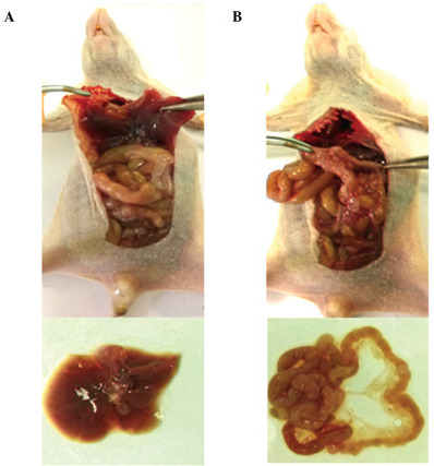Anatomic images showing ovarian cancer metastases to the (A) liver and (B) mesentery in an orthotopic transplantation nude mouse model.