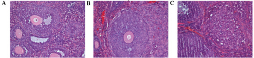 Anatomic images showing (A) the healthy ovaries in a control mouse and (B and C) the transplanted and metastatic ovarian cancer tumors in the ipsilateral and contralateral sides in an orthotopic transplantation nude mouse model. Hematoxylin and eosin stain; magnification ×400.