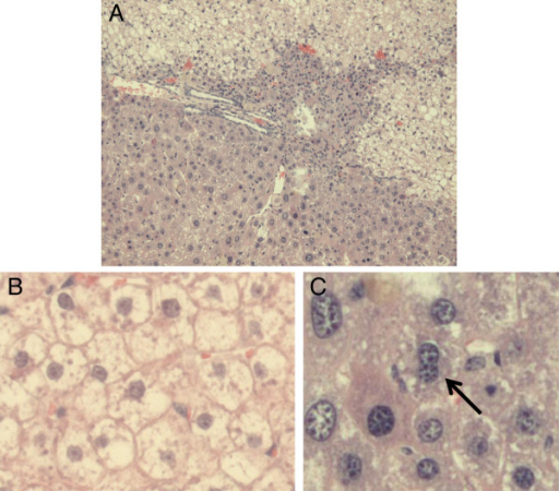 Histology and determination of polyploidy of a chimeric liver. (A) A representative section of a chimeric liver (haematoxylin and eosin staining) showing the morphological differences between pale human hepatocytes (upper zone), diseased mouse parenchyma (middle zone) and healthy mouse parenchyma originating from mouse hepatocytes that have eliminated both uPA transgene copies, known as red nodules (lower zone). Detailed view of chimeric liver sections, showing human hepatocytes (B) none of which is multinucleated and mouse hepatocytes (C), one of which is binucleated (arrow). Original magnification A: 200 x, B and C: 400 x.