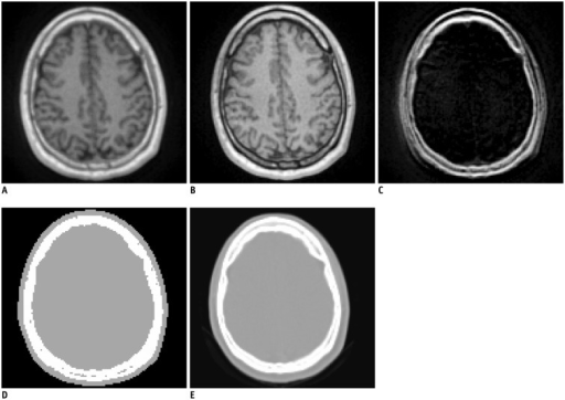 Ultrashort echo time (UTE) MRI-based attenuation correction.MR images acquired at first (A) and second (B) echo times (echo time = 0.07 ms and 2.46 ms, respectively). C. Differential image of A and B. D. UTE-based attenuation map. E. CT of same patient.
