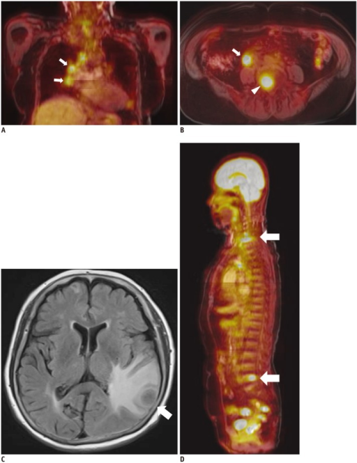 63-year-old male had colon cancer with brain, lung, and mediastinal lymph node (LN) metastasis.A. Coronal fused FDG-MR/PET image showed mediastinal LNs (arrows) with increased FDG uptake. B. Axial fused FDG-MR/PET image showed metastatic retroperitoneal LN (arrow) and metastatic bone lesion at L5 vertebral body (arrowhead). C. FLAIR image demonstrates brain metastasis in left temporal lobe (arrow). D. Reconstructed sagittal fused FDG-MR/PET image showed bone metastasis in cervical and lumbar spine (arrows). FDG = fluorodeoxyglucose, FLAIR = fluid attenuated inversion recovery, MR/PET = magnetic resonance imaging/positron emission tomography