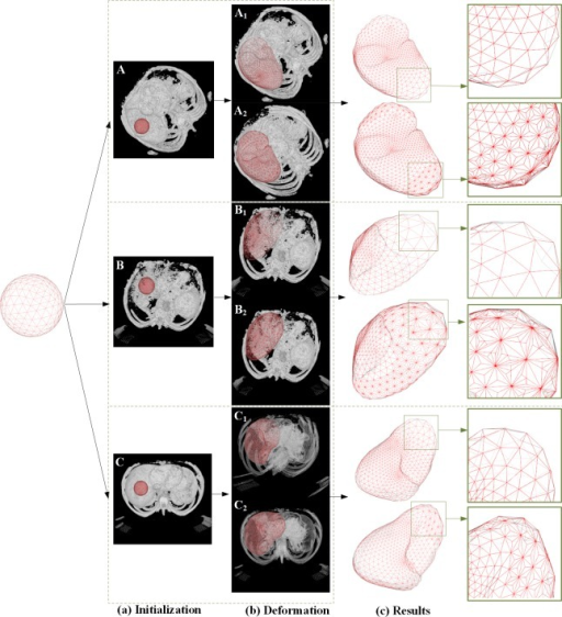 Segmentation results of the proposed method and the conventional DSM-based method.(A), (B) and (C) are three different data sets; (a) and (b) show the initialization and the finalized states of the deformation model; (c) shows the 3D meshes of the segmented liver.