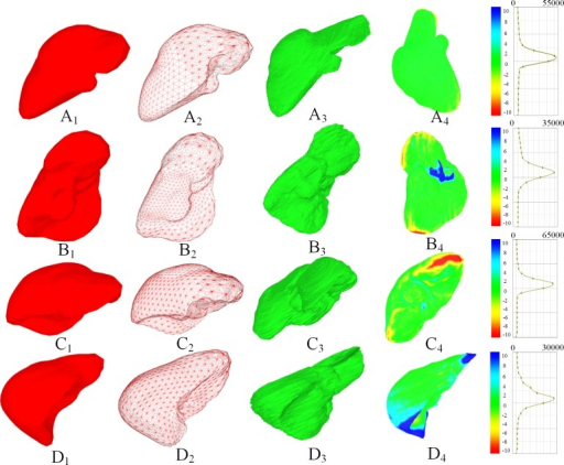 Segmentation results of four livers (A to D).(A1) to (D1) show the meshes of the liver; (A2) to (D2) show the wired grid of the liver; (A3) to (D3) show the ground truth of the liver surface; (A4) to (D4) show the color map of the segmentation error on the surface of the liver.
