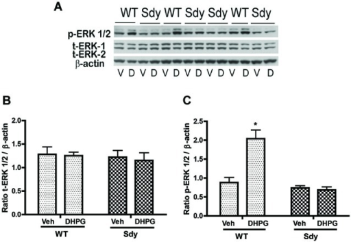 mGluR1-induced ERK1/2 phosphorylation in hippocampal synaptoneurosomes in WT and sdy mice. Synaptoneurosomes were incubated with a group I mGlu receptor agonist S-DHPG (5 μM) for 2.5 min at room temp. (A) shows the representative Western blot signals using antibodies specific for p-ERK 1/2, (total) t-ERK 1/2 and β-actin. DHPG stimulation triggered significant ERK1/2 phosphorylation in WT but not in sdy synaptoneurosomes. (V, vehicle; D, DHPG). (B,C) show ROD ± SEM of t-ERK1/2 and p-ERK1/2 respectively (n = 5–8 per genotype). *p = 0.0015 WT DHPG vs. WT vehicle (Tukey's post hoc).