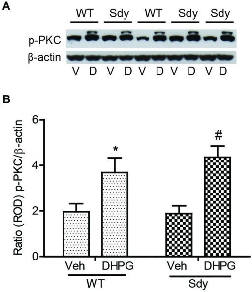 No significant change in mGluR1-induced hippocampal PKC phosphorylation between WT and sdy mice. Synaptoneurosomes were incubated with 5 uM DHPG for 2.5 min at room temp. Phosphorylated PKC (p-PKC) was measured by Western blots, using a pan p-PKC antibody. (A) representative Western blot of the expression of phospho-PKC (p-PKC) and β-actin from WT and Sdy mice (V, vehicle; D, DHPG). (B) mean + SEM (n = 4–6 per genotype) of the ratio from p-PKC vs. β-actin. Two-way ANOVA indicated the significant main effect of treatment only (*p = 0.032 WT DHPG vs. WT vehicle; #:p = 0.009 sdy DHPG vs. sdy vehicle).