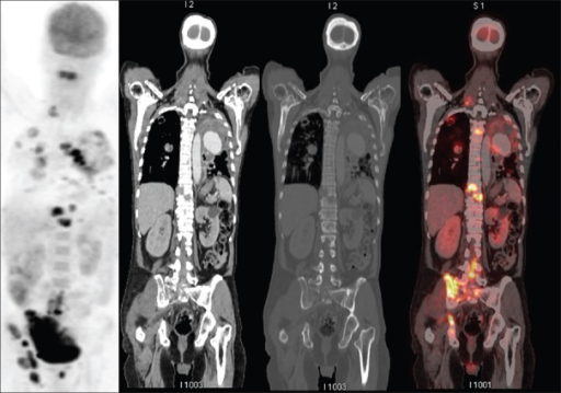 Maximum intensity projection and coronal positron emission tomography/ computerized tomography images revealing multiple metabolically active mixed lytic sclerotic disseminated skeletal metastasis (arrows)