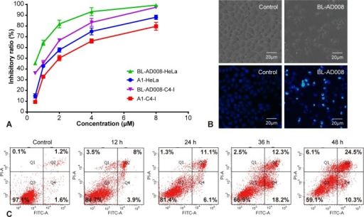 BL-AD008 induces apoptosis in HeLa cells(A) Cell viability was measured by the MTT assay in A1-treated and BL-AD008-treated HeLa cells. (B) The cellular morphology was observed without or with BL-AD008 under the inverted microscopy and fluorescent microscopy, respectively. (C) Apoptosis was determined by the analyses of Annexin staining.