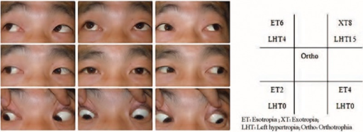 Clinical photograph of 9 diagnostic positions before operation and the measurements of deviation (showing limitation of elevation in adduction of the right eye). ET = esotropia, LHT = left hypertropia, Ortho = orthotropia, XT = exotropia.