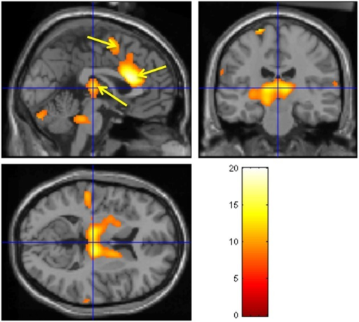 Brain activity modulated by the CNV amplitude. Neural activities associated with CNV generation. The observed regions during the CNV task include bilateral thalamus, ante- rior cingulate, SMA, pons, and cerebellum. A fixed-effect analysis was used (p < 0.05, cor- rected). (Nagai et al., 2004c, permission obtained).
