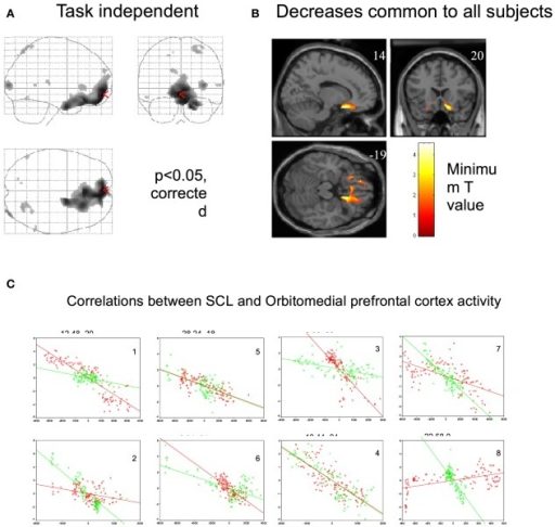 Regional brain activity associated with decrease in skin conductance level. (Nagai et al., 2004d, permission obtained). (A) Regional brain activity related to task-independent decreases in skin conductance level (SCL). Decreases in SCL were associated with increased activity in VMPFC and OFC. (P < 0.05, corrected). During the EDA biofeedback, activity in VMPFC and OFC is decreased. (B) Regional brain activity associated with decreases in skin conductance level common across all subjects (P < 0.05, corrected). Common brain activity was found in VMPFC and OFC. (C) Plots of individual subjects data showing correlations between skin conductance and ventromedial and orbitofrontal BOLD activity during biofeedback relaxation (green dots) and arousal tasks (red dots). There was a significant negative correlation between adjusted VMPFC and OFC BOLD responses and task-independent SCL activity in the eight subjects.