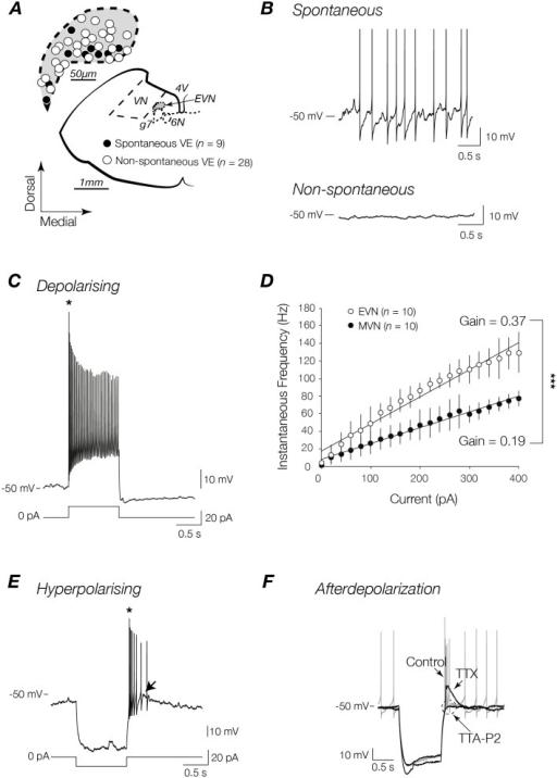 Discharge profiles of spontaneous and non-spontaneous E   Open-i