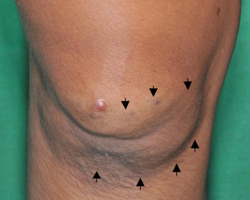 A well-defined bluish mass on the right knee (arrows).