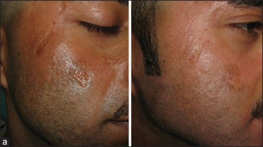 (a) Post-traumatic atrophic scars on face (b) After four sessions of fractional CO2 treatment