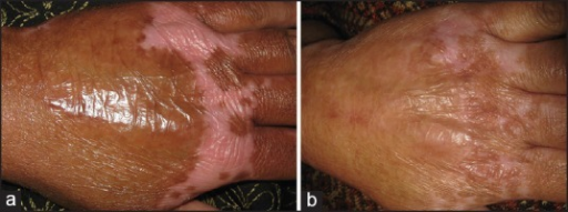 (a) Post-burn scars on hand (b) Significant clinical response after fractional CO2 laser treatment