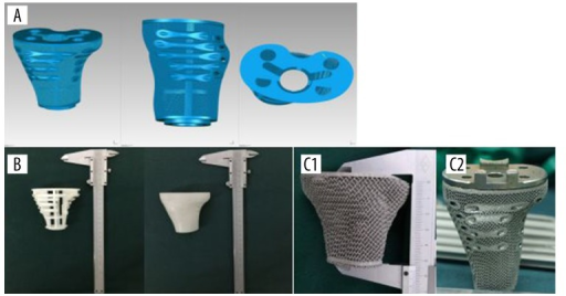 Design of the block. (A) The modified proximal tibia block. (B) 3D-printed model for surgical simulation. (C) Difference between the original case (C1) and the modified one (C2).