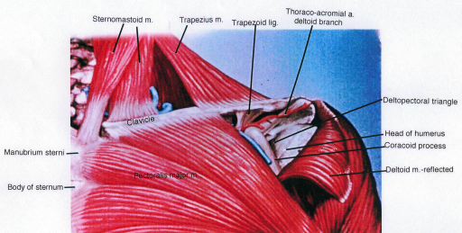 sternum; sternomastoid muscle; clavicle; pectoralis major muscle; trapezius muscle; trapezoid ligament; deltopectoral triangle; humerus; coracoid process; deltoid muscle
